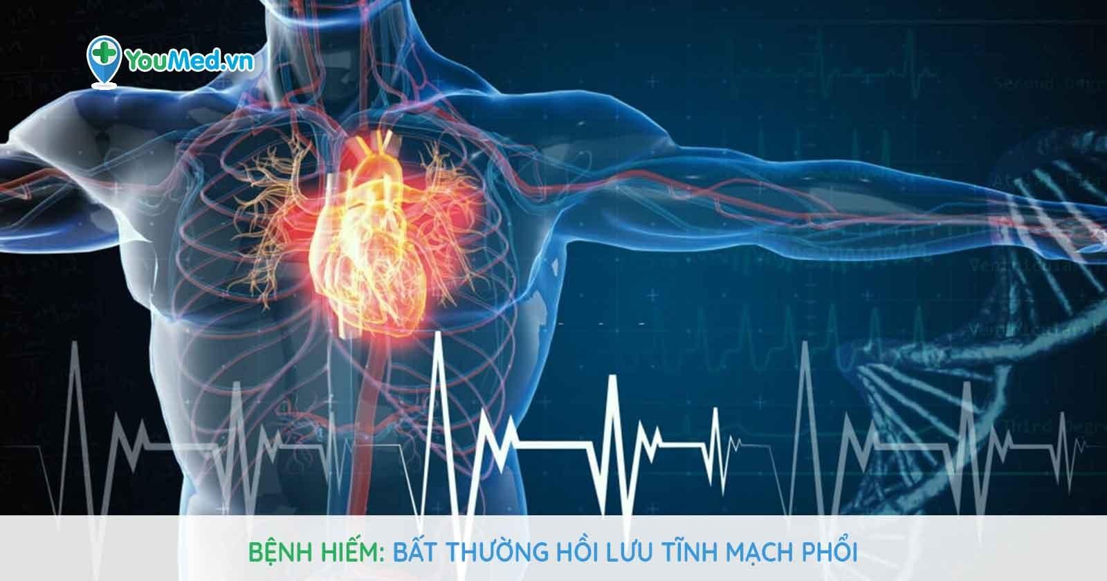 Bệnh hiếm - Bất thường hồi lưu tĩnh mạch phổi