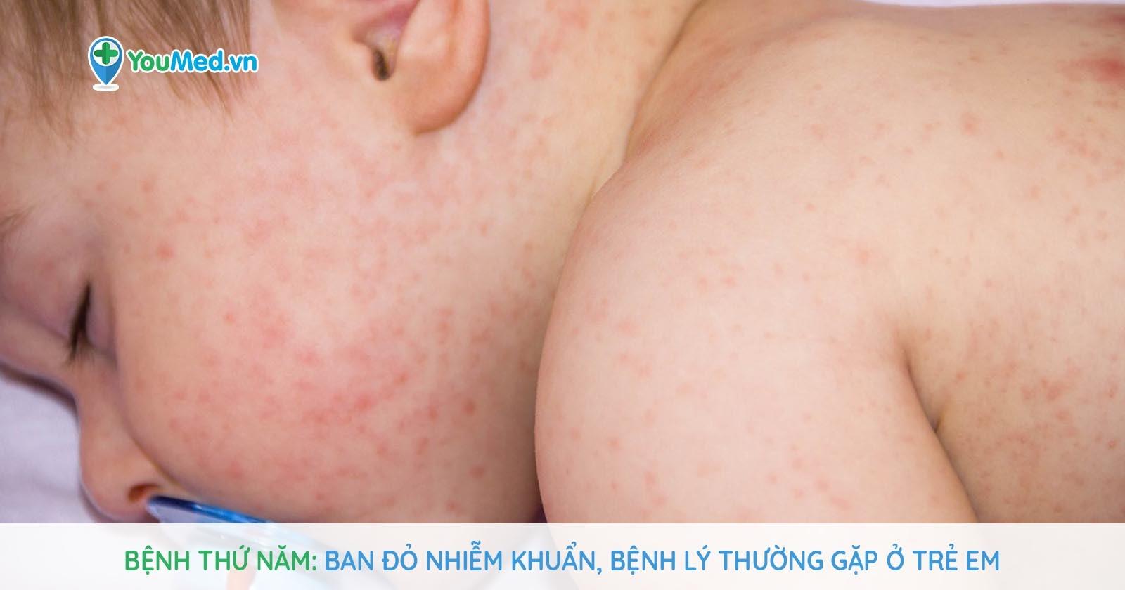 Bệnh thứ năm - Ban đỏ nhiễm khuẩn, bệnh lý thường gặp ở trẻ em
