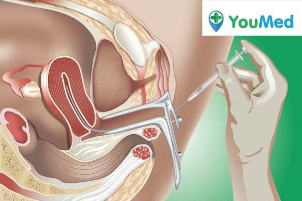 Phương pháp bơm tinh trùng vào tử cung - Các phương pháp hỗ trợ sinh sản