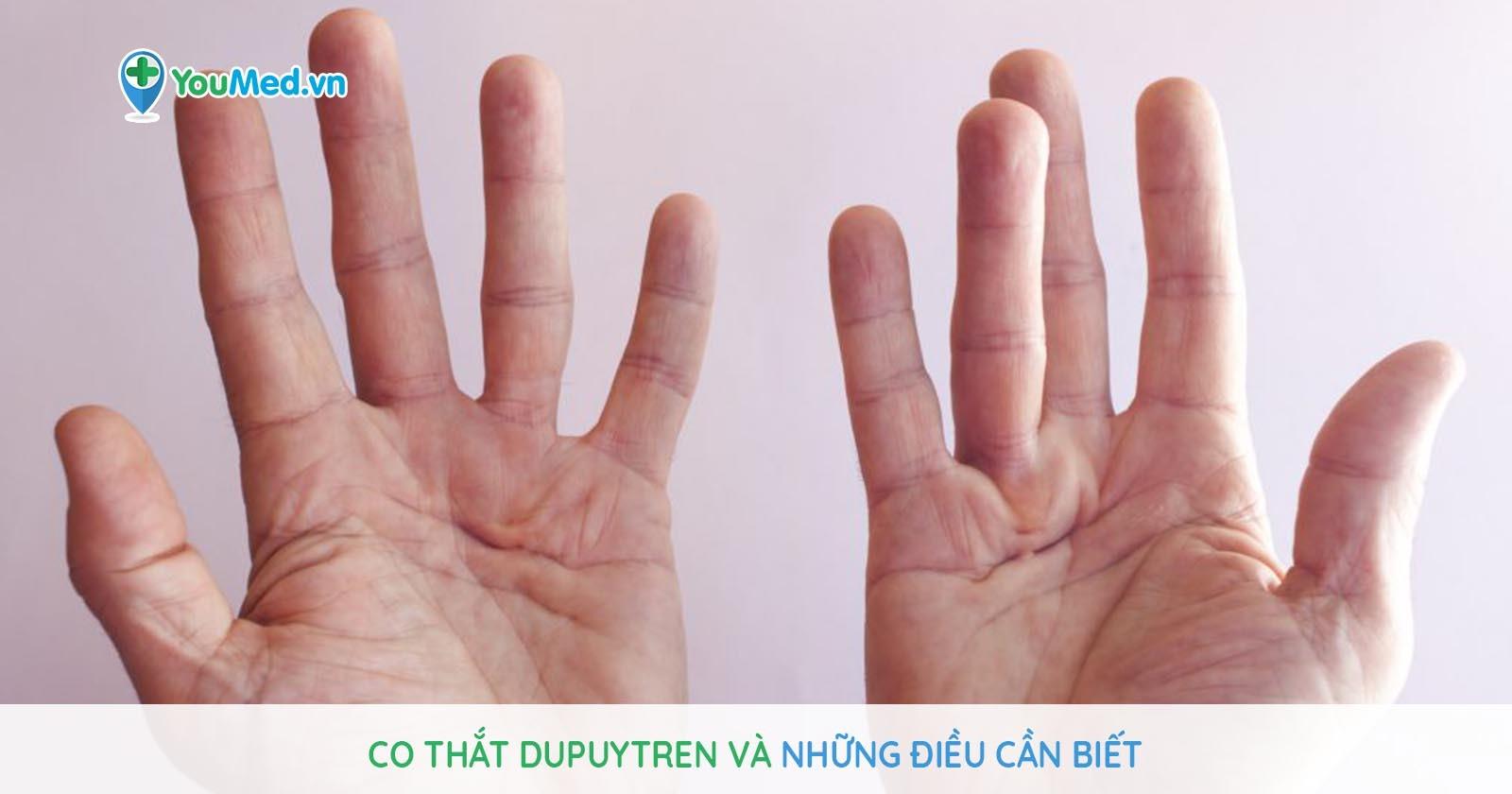 Co thắt Dupuytren và những điều cần biết