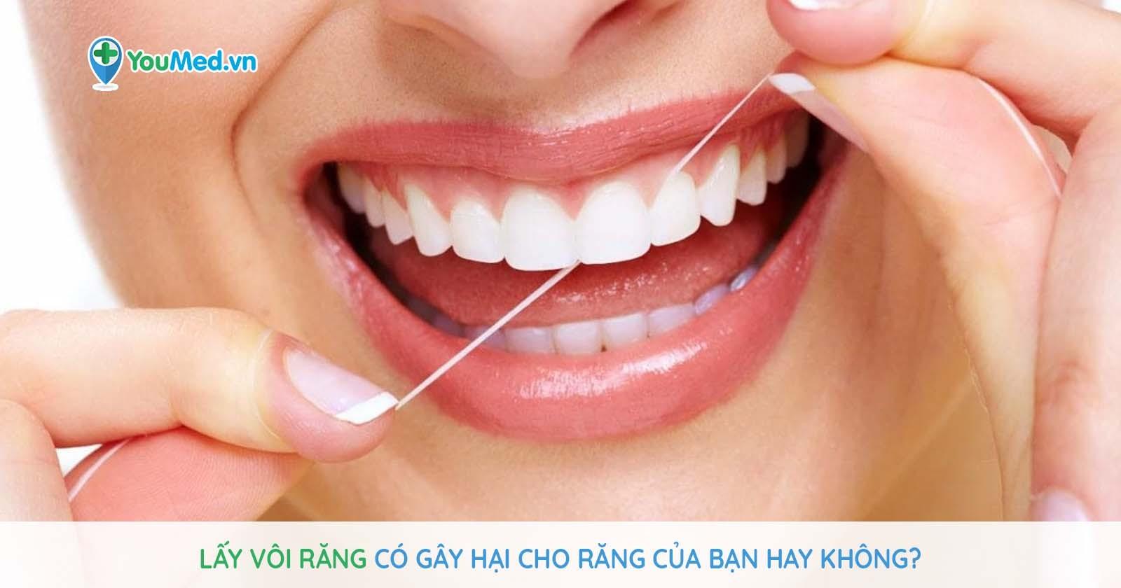 Lấy vôi răng có gây hại cho răng của bạn hay không?