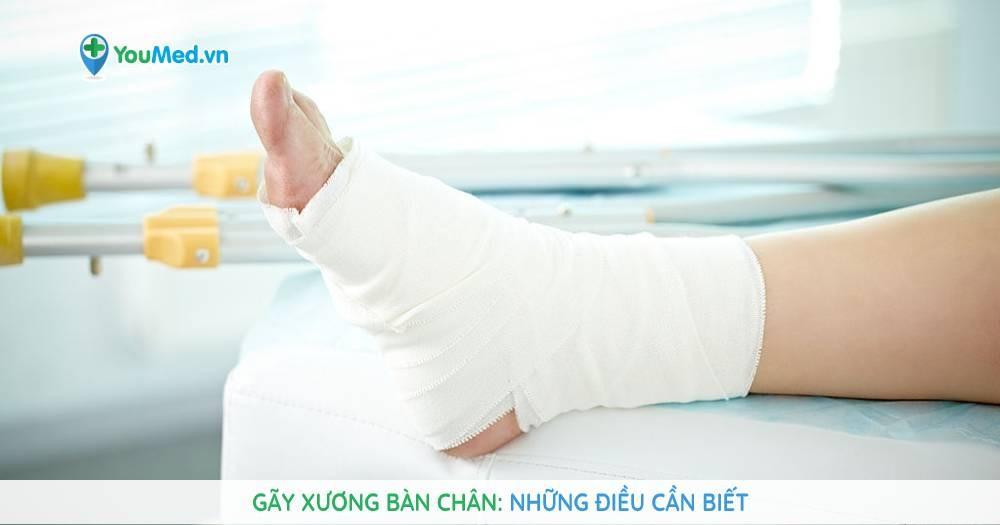 Gãy xương bàn chân: Những kiến thức cơ bản cần biết
