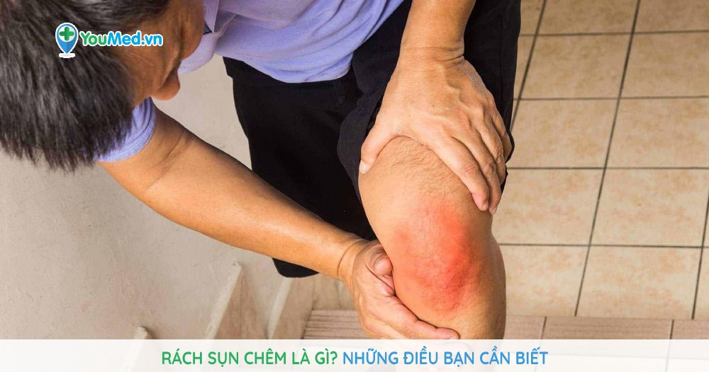 rach-sun-chem-la-gi-nhung-dieu-ban-can-biet