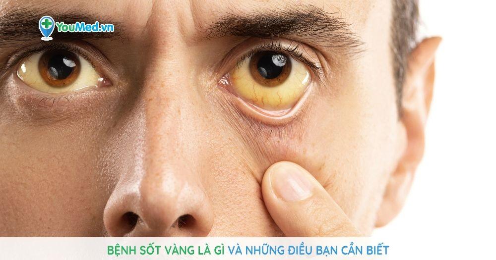 Bệnh sốt vàng là gì và những điều bạn cần biết