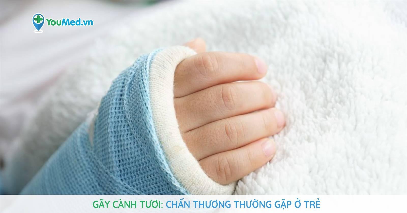 Gãy cành tươi: Chấn thương thường gặp ở trẻ