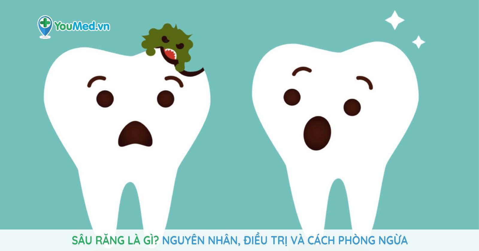 Sâu răng là gì? Nguyên nhân, điều trị và cách phòng ngừa