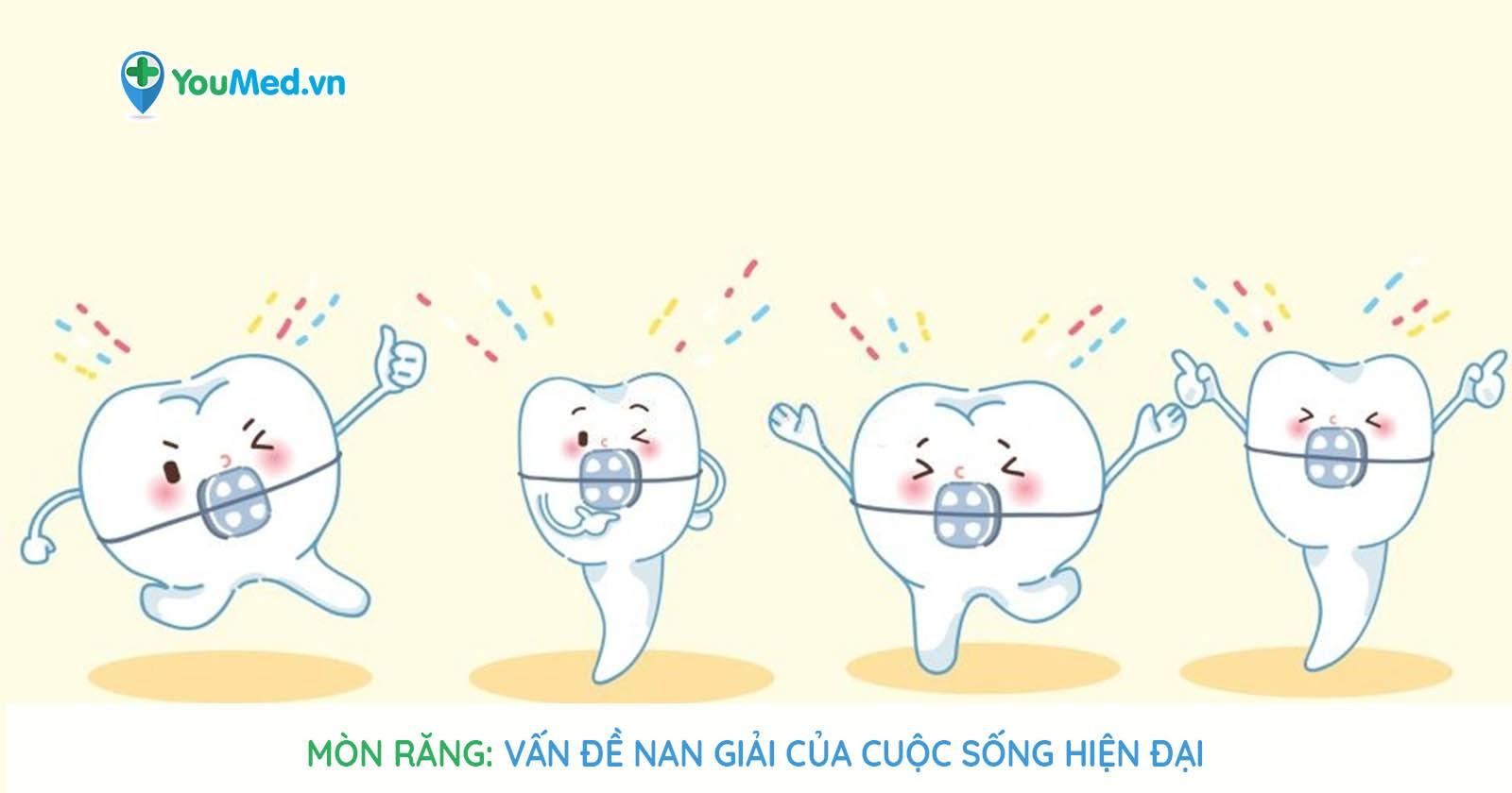 Mòn răng - Vấn đề nan giải của cuộc sống hiện đại