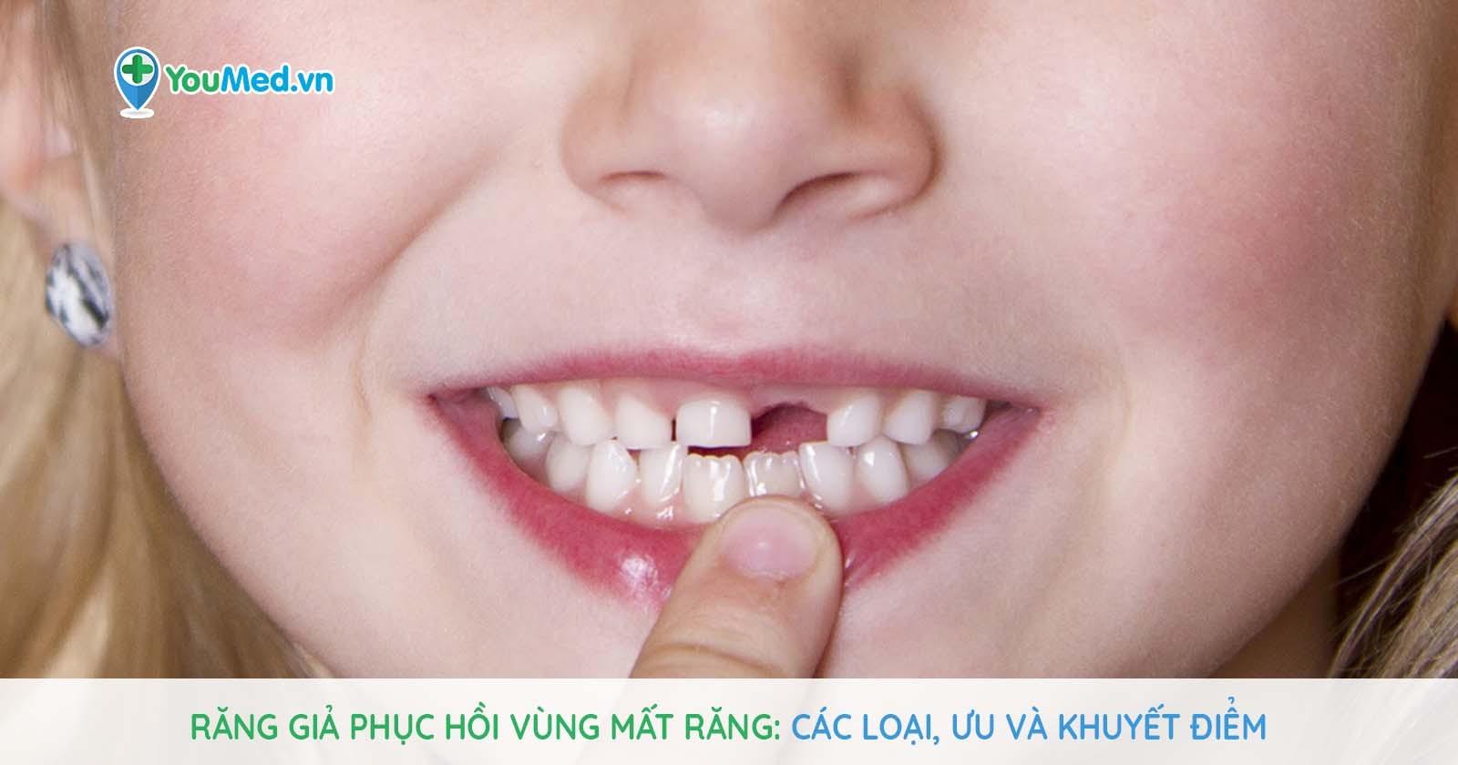 Răng giả phục hồi vùng mất răng - Các loại, ưu và khuyết điểm