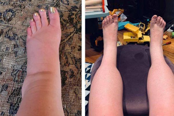 mắt cá chân và bàn chân của bạn bị sưng phù nhiều hơn khi mang thai tuần 33