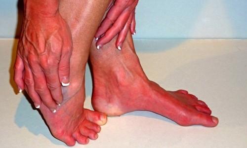 Triệu chứng đau đỏ ở chi