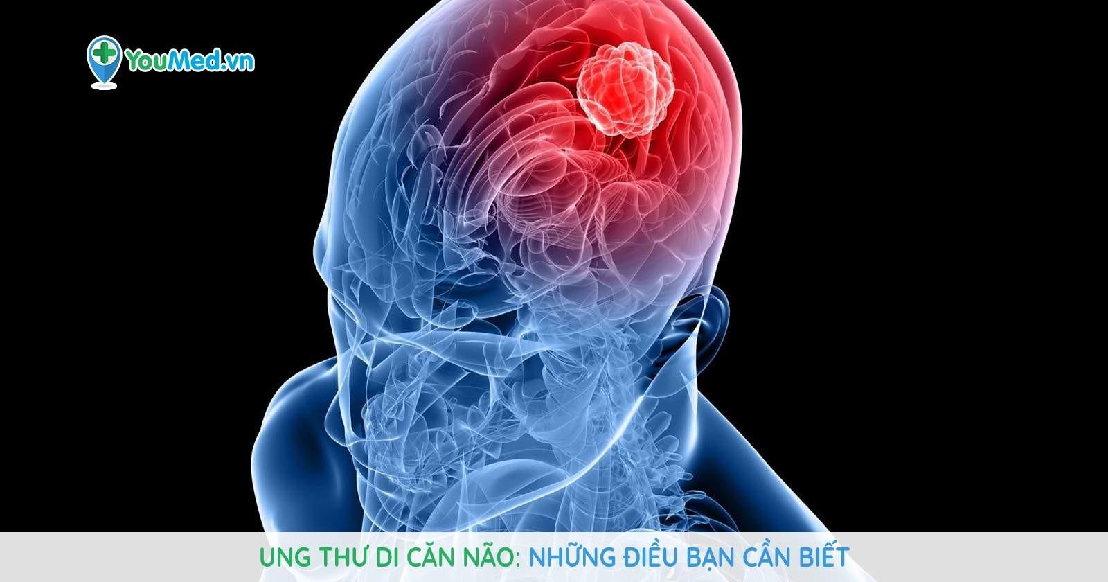 Ung thư di căn não - Những điều bạn cần biết