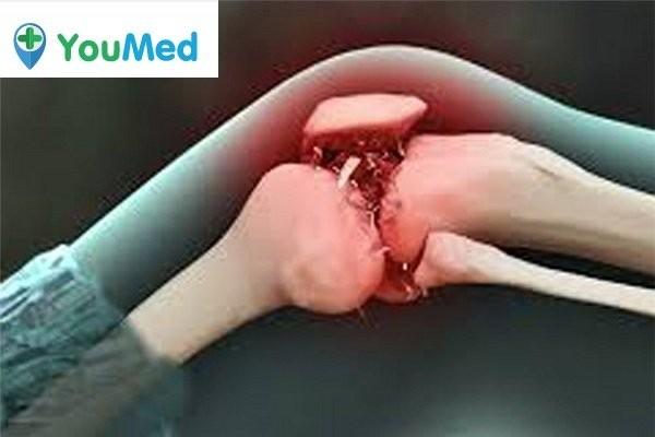 Ung thư di căn khớp gối có thể gây nên u nang Baker