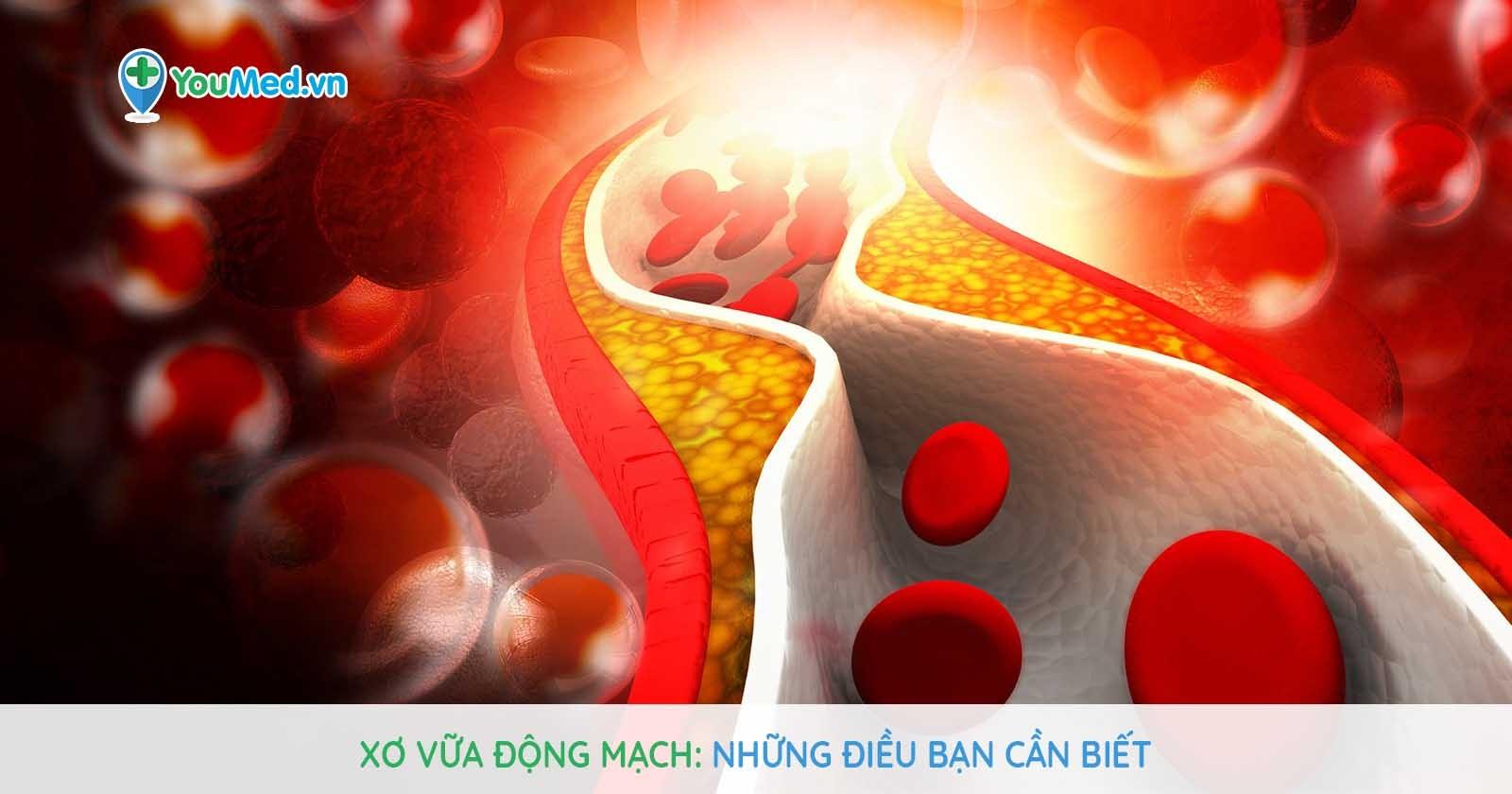 Xơ vữa động mạch: Những điều bạn cần biết