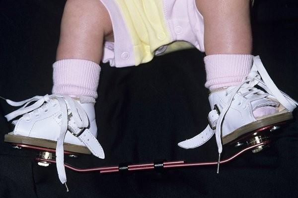 Bé có thể phải dùng một số loại giày đặc biệt để tái định hình bàn chân