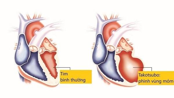 Khác biệt giữa cơ tim bình thường và cơ tim Takotsubo