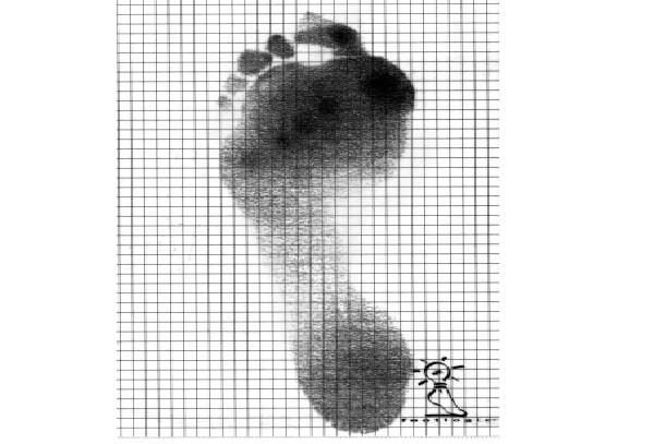 Vùng đậm màu là vùng chịu áp lực nhiều nhất trên bàn chân khi đứng - cũng là vùng dễ loét nhất