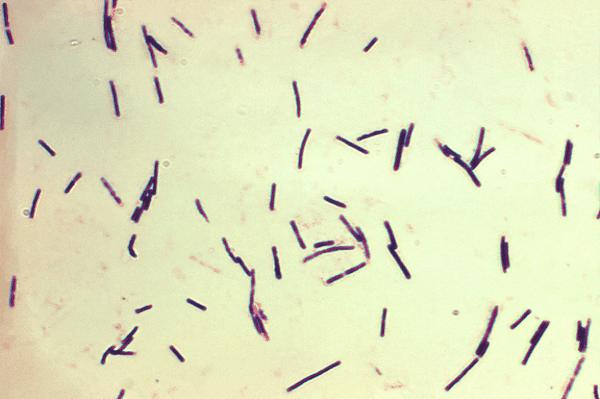 Hình ảnh Clostridium perfingens trên kính hiển vi đã được nhuộm.