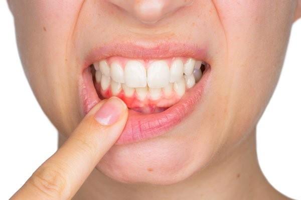 Vấn đề về nướu cần được điều trị để tránh gây ra viêm