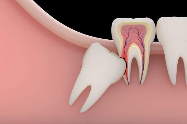 Nếu răng khôn biến chứng thì bạn phải nhổ bỏ
