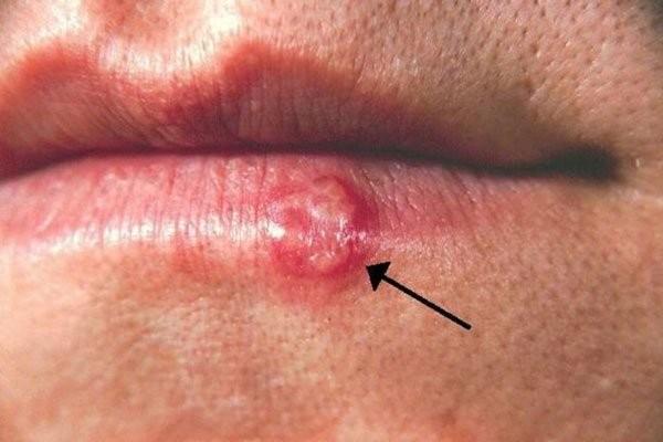 Herpes môi