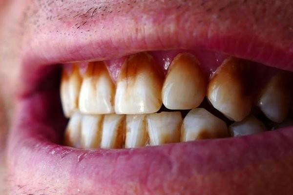 Có nhiều nguyên nhân dẫn tới răng nhiễm màu