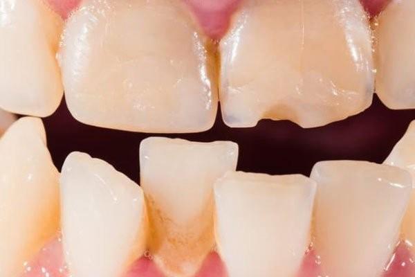 Khi răng xô lệch, các phương pháp chỉnh nha sẽ được áp dụng