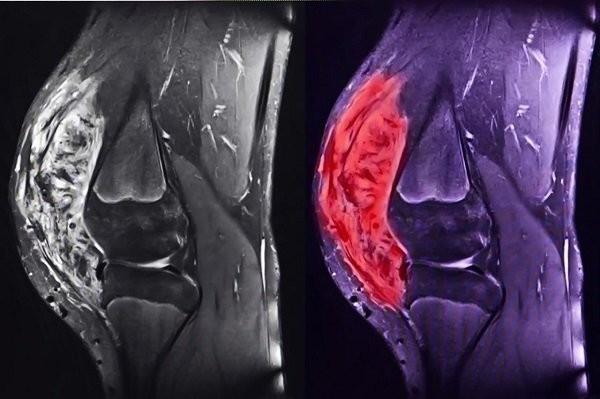 Sarcoma xuất nguồn từ trung mô