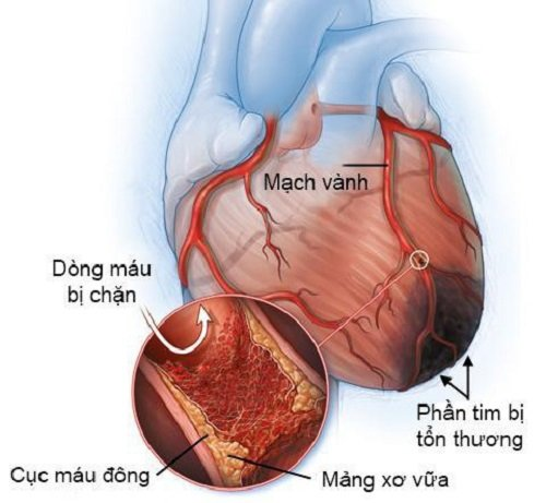 Nhồi máu cơ tim: nguyên nhân gây block nhánh