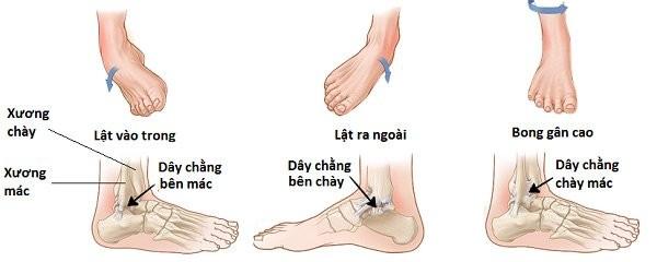 Các loại tổn thương dây chằng vùng cổ chân