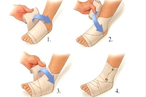 Các bước băng ép cổ chân