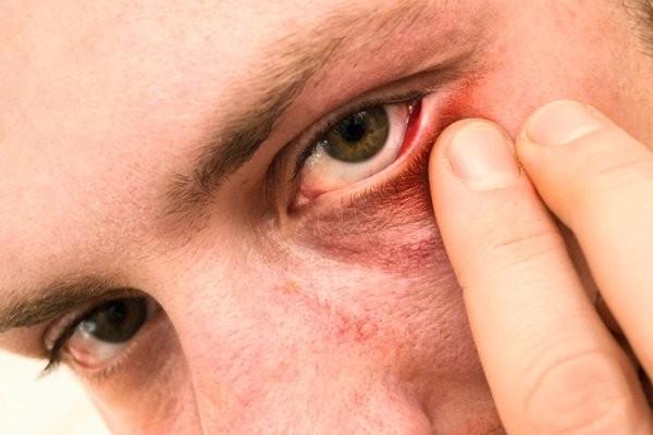 Mắt bị ảnh hướng chứng đỏ mặt