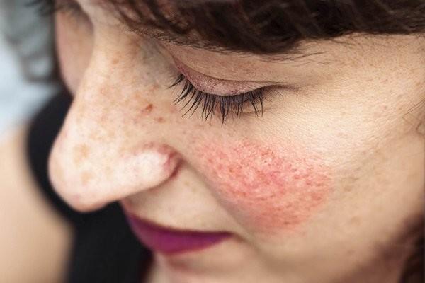 Người da trắng có nguy cơ mắc phải chứng đỏ mặt cao hơn