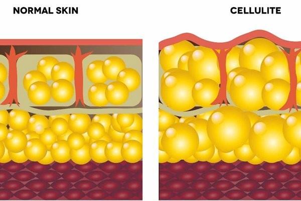 Da bình thường và da bị sần vỏ cam