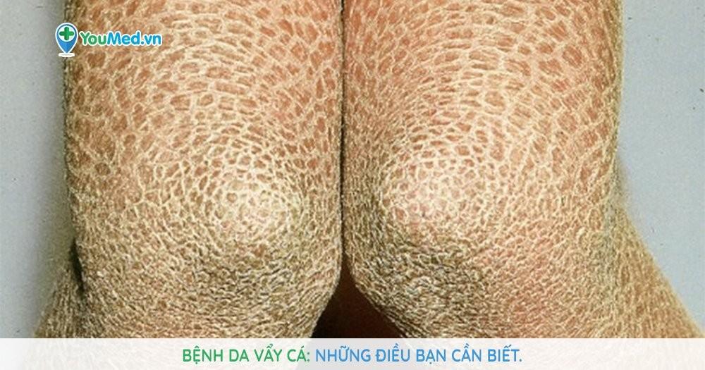 Bệnh da vẩy cá là gì? Cách để có làn da đẹp hơn