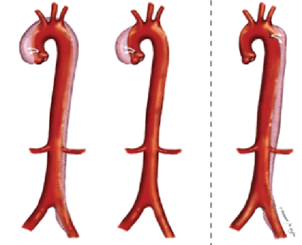 3 dạng bóc tách động mạch chủ ngực