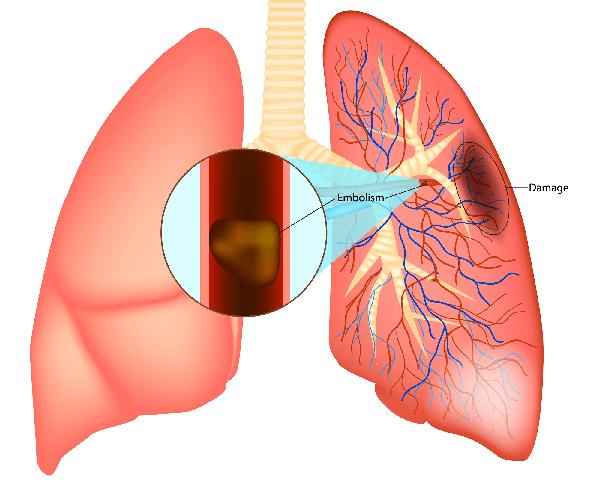 Embolism: Huyết khối. Damage: Phổi bị tổn thương