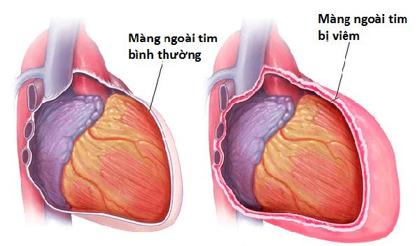 đau ngực ở phụ nữ có thai