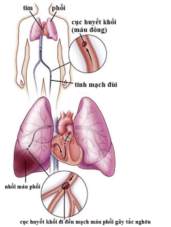 Huyết khối ở động mạch phổi thường xuất phát từ tĩnh mạch chân di chuyển lên tim cuối cùng là đến phổi