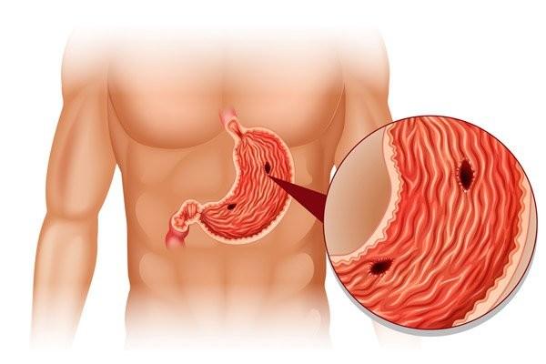 Thủng dạ dày là biến chứng nguy hiểm của loét và ung thư dạ dày