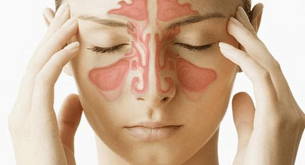 Cần phân biệt đau đầu do xoang và đau đầu do viêm xoang cấp