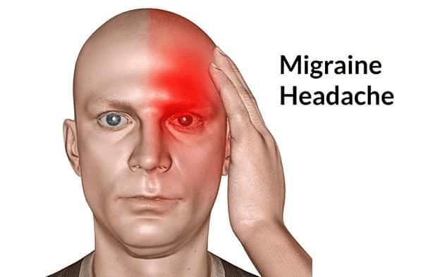 Migraine thường được biết đến với cái tên: Đau nửa đầu phức tạp