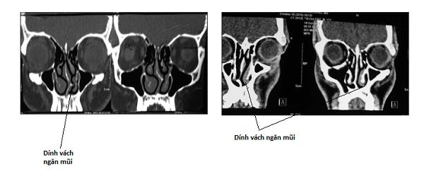 Hình ảnh dính các xoăn mũi và vách ngăn mũi mới nhau trên CT scan.