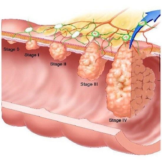 Các giai đoạn (Stage) của ung thư. Giai đoạn IV các tế bào sẽ di căn tới cơ quan khác (di căn xa) như não, gan, xương, phổi