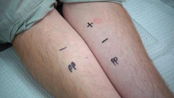Hình minh họa một test lẫy da thông thường