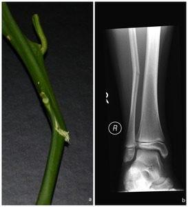 Gãy cành tươi xương mác ở cẳng chân