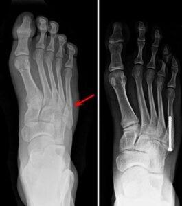 X quang trước và sau khi phẫu thuật gãy xương bàn chân