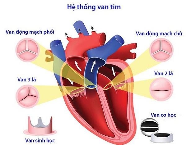 Bệnh tim mạch: Liệu bạn đã thật sự hiểu và biết về nó chưa?