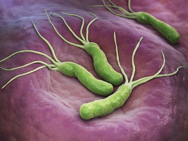 Nhiễm H.Pylori ít gây triệu chứng nhưng hoàn toàn không thể xem thường