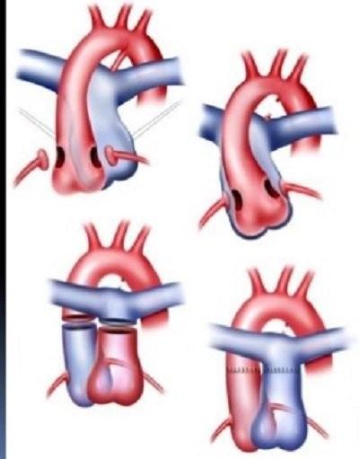 Phẫu thuật chuyển động mạch
