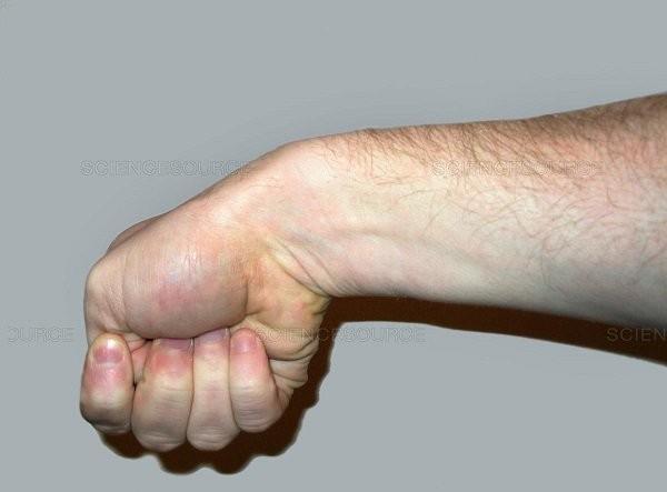 viêm gân duỗi ngón cái